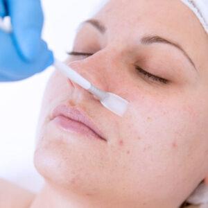 Facials, Skincare & Chemical Peel